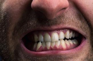 grinding-teeth-shutterstock_149579294-500x224