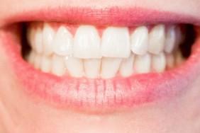 teeth_1652976_960_720[1]