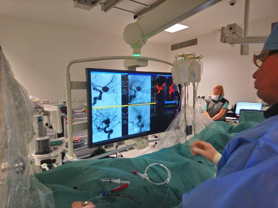 Лікарі опановують тромбекстракцію – прогресивну методику в лікуванні ішемічного інсульту (Фото)