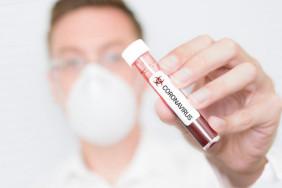 koronavirus-simptomy-i-profilaktika-3-0