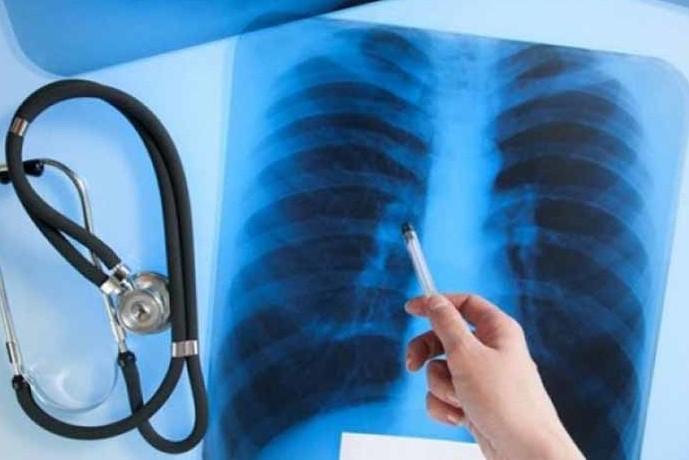 Лікарі розповіли про ситуацію із захворюванням на туберкульоз в області