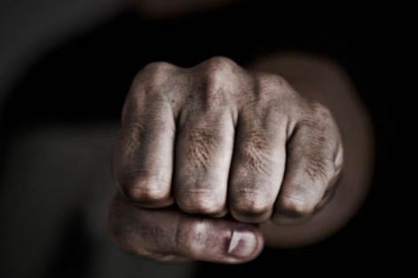27-річний чернігівець постане перед судом за нанесення тілесних ушкоджень незнайомцю