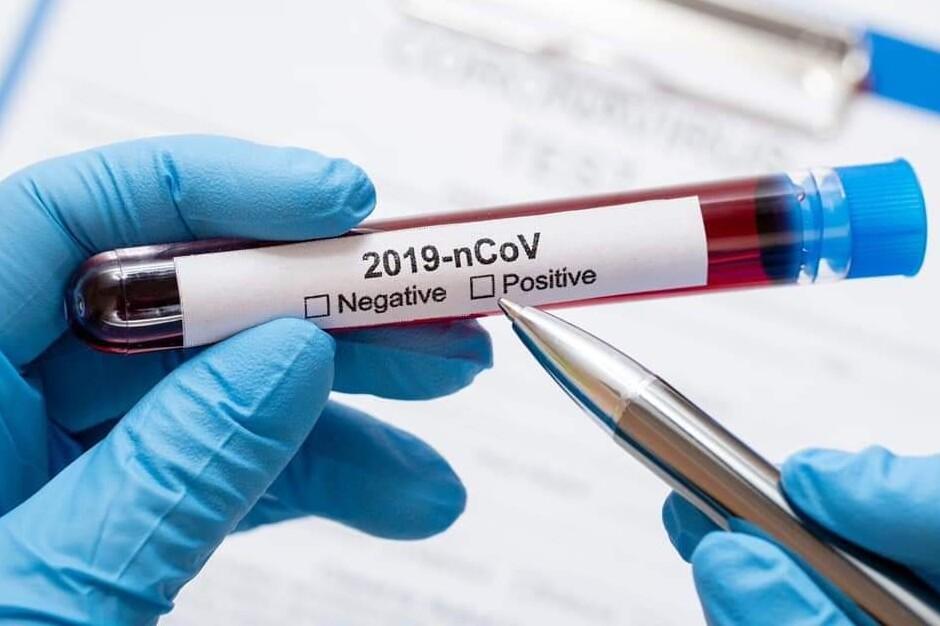 2021_04_07_coronavirus