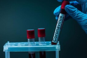 24-koronavirus-2